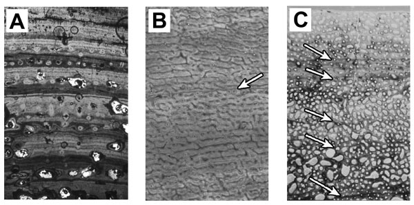 Three different types of bone growth scene in vertebrates. A. Low vascular, lamellar bone. B, highly vascular, woven bone. C. Fibrolamellar bone. Arrows indicate Lines of Arrested Growth (LAGs). Image from http://ltc.smm.org/histology/
